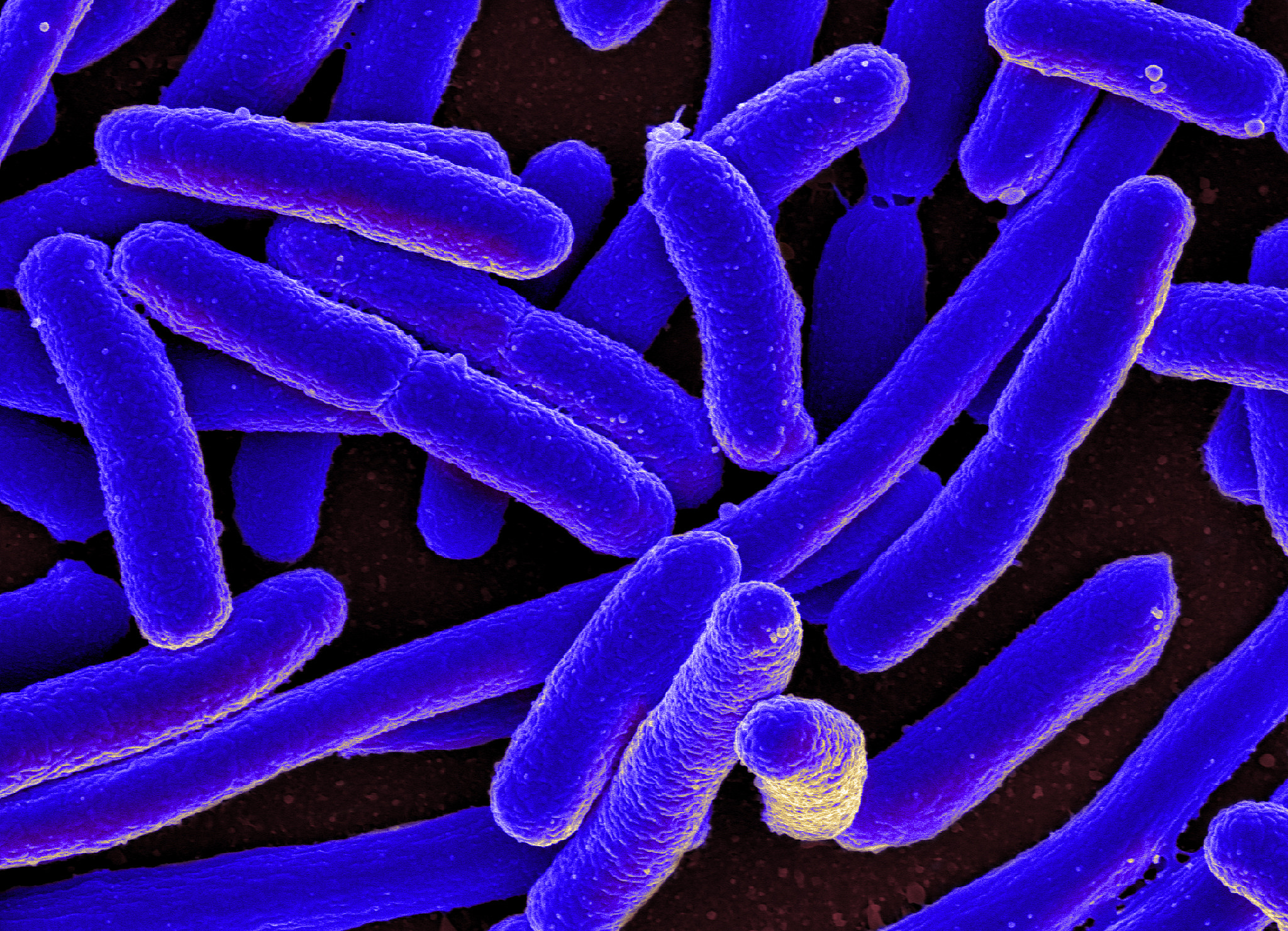 Colorized scanning electron micrograph of E coli grown in culture and adhered to a cover slip. Image credit: Flickr.com user NIAID