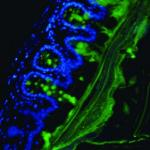 Image of goblet cells and mucus